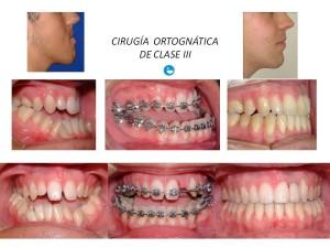 cirugia-ortognatica-claseIII-caso1